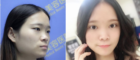 西安现代妇产医院医疗美容科王辉