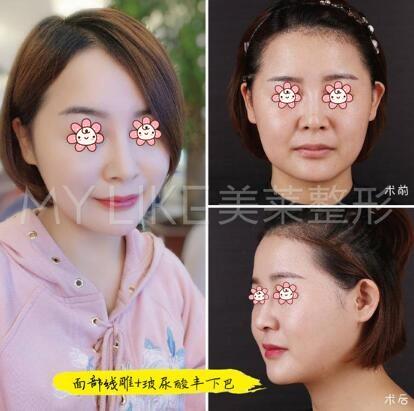 面部线雕加玻尿酸丰下巴案例