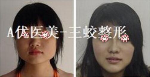 面部轮廓案例