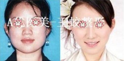 面部轮廓案例1