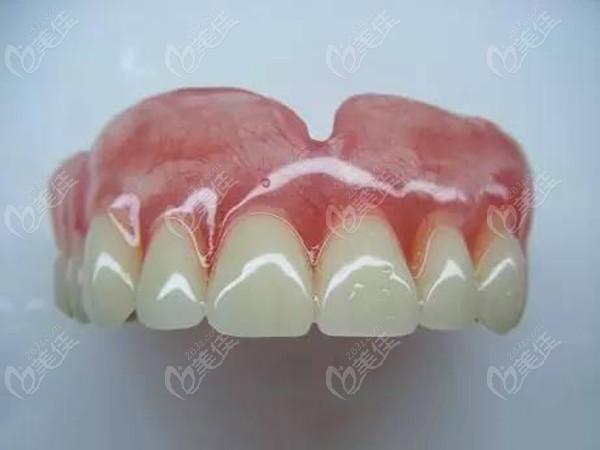佩戴的活动义齿