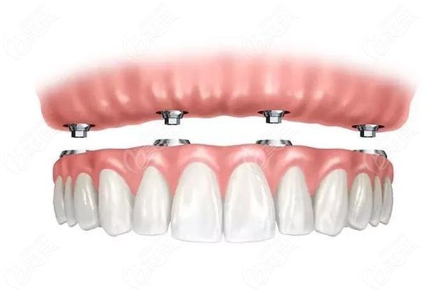 即刻种植牙拔牙植入植骨材料