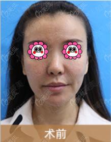 北京加减美医疗美容门诊部蔡海亮术前照片1