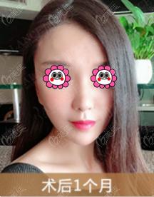 北京加减美医疗美容门诊部蔡海亮术后照片1