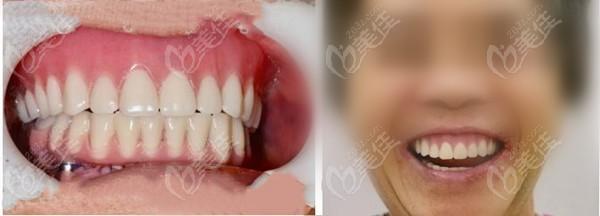 南通牙卫士口腔门诊部黄自印术后照片1