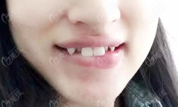 整牙前的口内照
