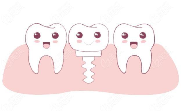 种植牙的形态