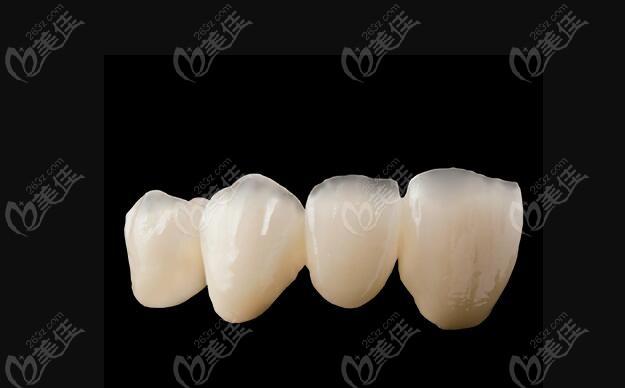 牙冠的品牌和种类