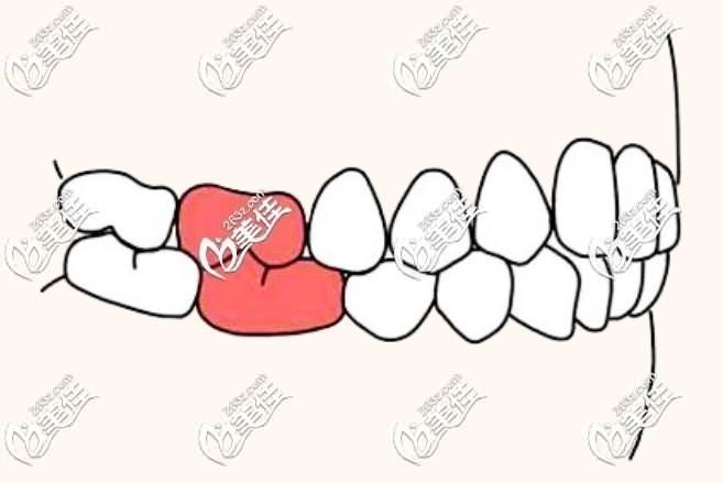 健康牙牙合标准
