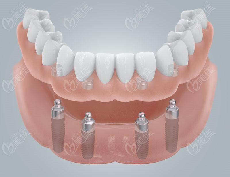广大口腔即刻种植牙的美观性