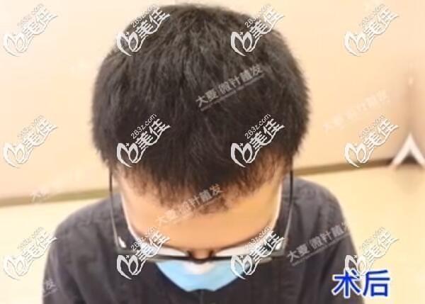西安大麦微针植发王悦术后照片1