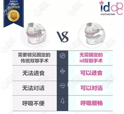 韩国ID无捆绑双颚手术优势