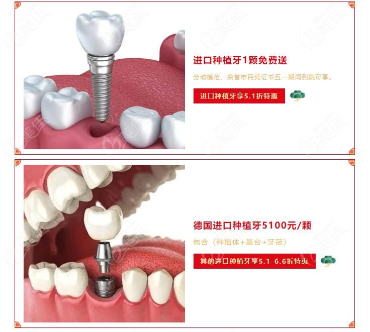 广州中家医家庭医生口腔医院德国进口种植牙活动