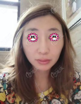 北京百达丽医疗美容门诊部倪锋术后照片1