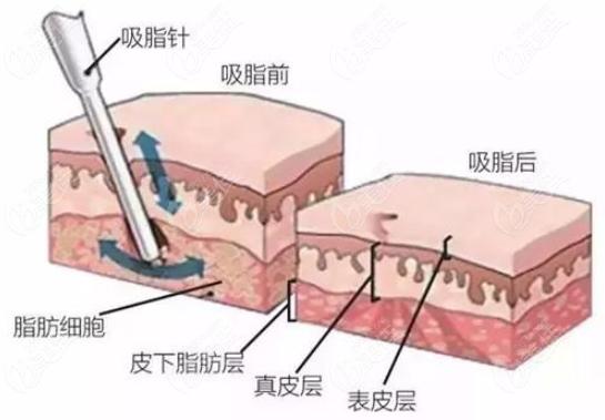 吸脂手术图解