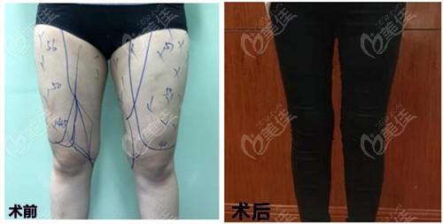 哈尔滨双燕大腿吸脂对比效果