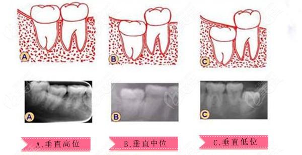 垂直阻生智齿分为3种类型