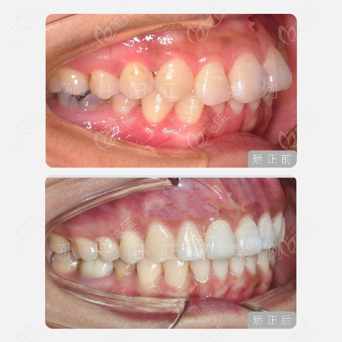 马泷齿科孙丹阳医生对牙齿深覆合的舌侧矫正