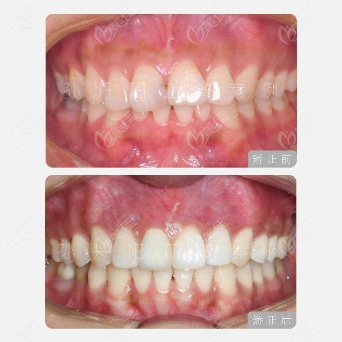 牙齿深覆盖让孙丹阳医生做舌侧矫正的图片