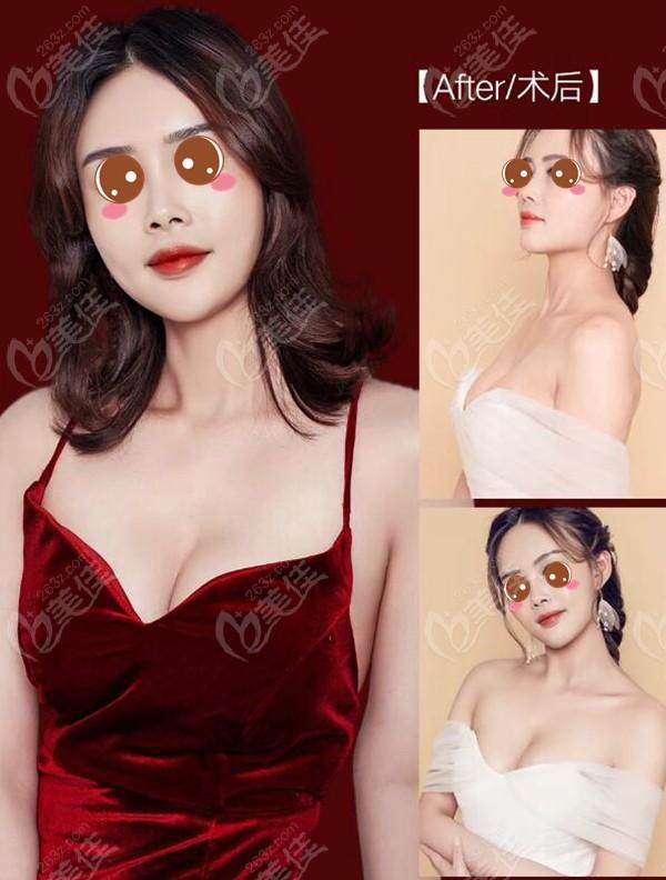 武汉五洲莱美假体隆胸术后