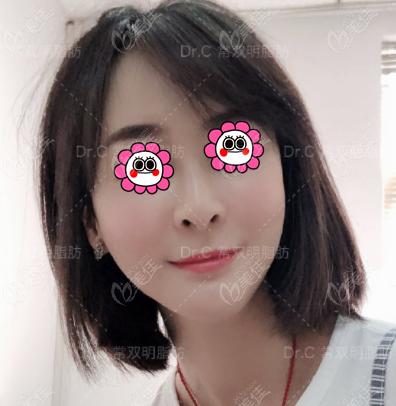 我评价北京常双明做面部脂肪填充比较强,不信这有真实图片你瞧瞧