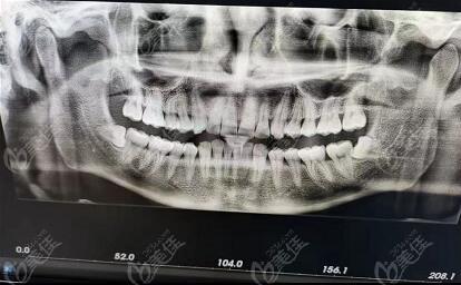 牙齿矫正顾客评价固德口腔