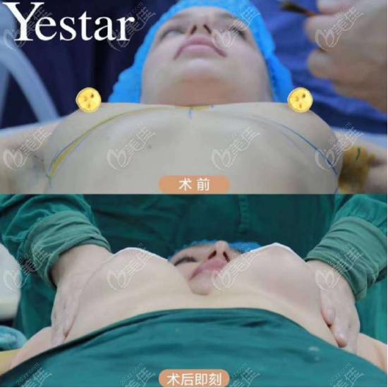 西安艺星医疗美容医院隆胸照片图