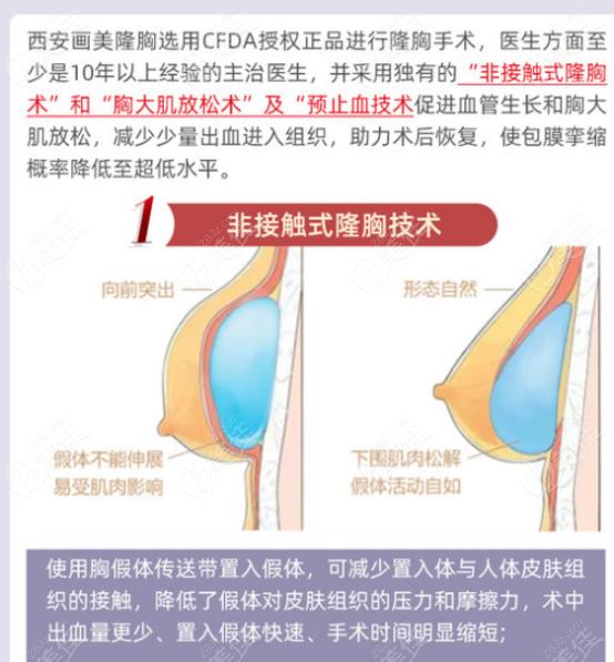 西安画美医疗美容医院的隆胸技术