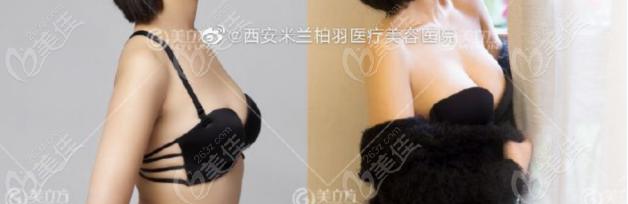 西安米兰柏羽的隆胸照片图
