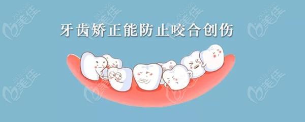 牙齿矫正能防止咬合创伤