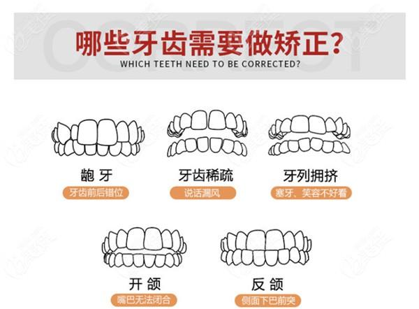 哪些牙齿需要做矫正