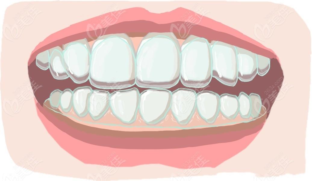 牙齿矫正的价格表