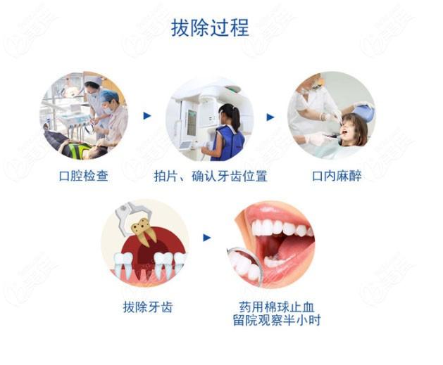拔智齿的过程图
