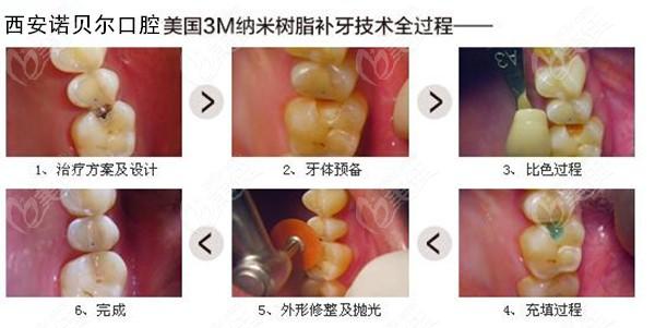 纳米树脂补牙全过程