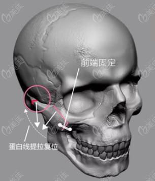 王珍祥颧骨内推手术