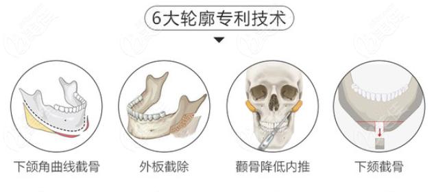 王氏轮廓手术专有技术