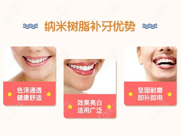 纳米树脂补牙优势