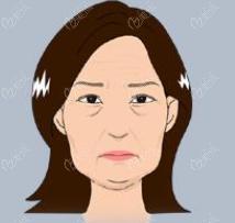 面部衰老组织下垂示意图