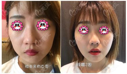 北京新星靓做童颜锁埋线提升可以不?真人效果可见