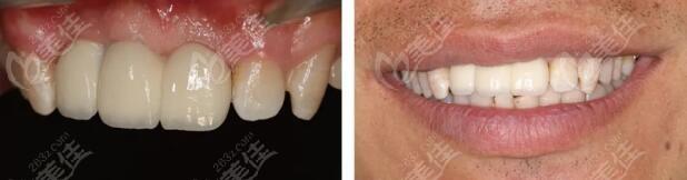 真实分享:上门牙连续缺失4颗用即刻种植方法修复的效果