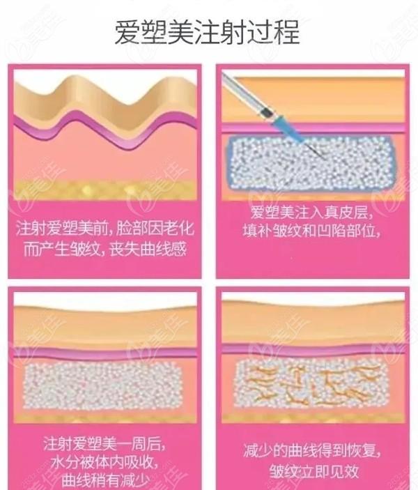 爱塑美童颜针的注射使用过程