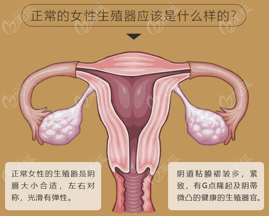 女性私密整形手术