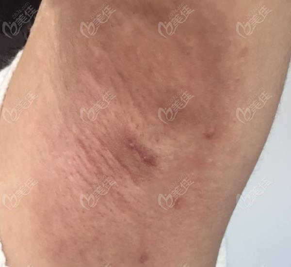 昆大疤痕医院微创去狐臭术后2个月恢复图