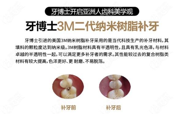 3M二代纳米树脂补牙