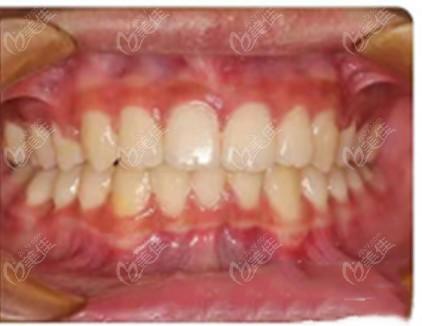 牙齿中度拥挤并非都要拔牙,看我扩牙弓后戴金属自锁托槽矫正的效果便知