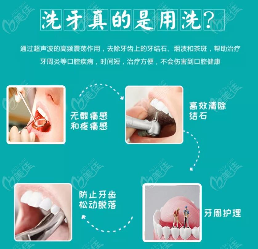 惠州致美口腔超声波洗牙不仅正规,而且价格也超便宜呦