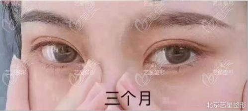 我觉得北京王琪做美杜莎双眼皮技术蛮好的,毕竟也是有自己的特点