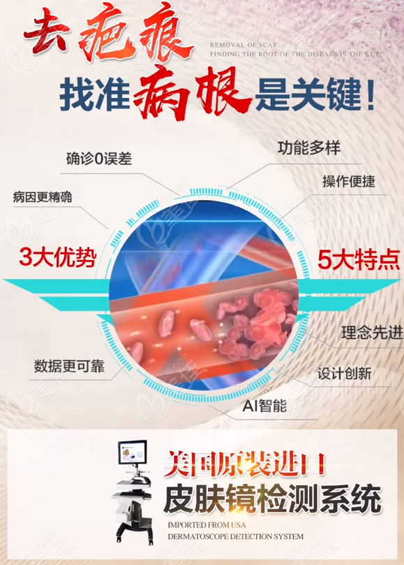 广州燕岭疤痕胎记医院设备先进
