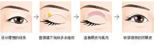 双眼皮美学标准是什么呢?