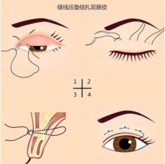双眼皮缝合技术